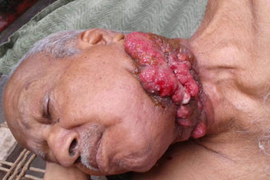 Carcinoma of Left