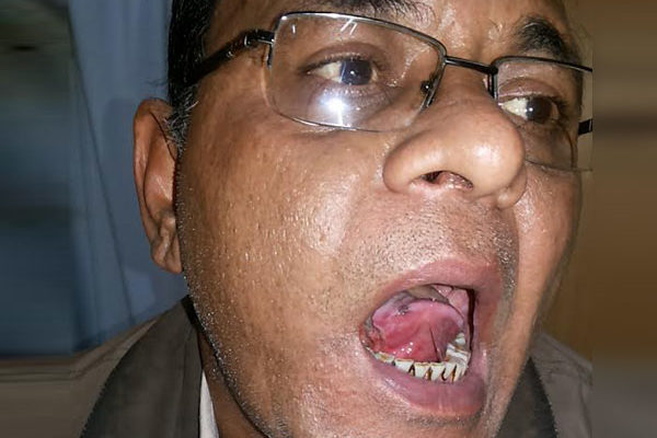 Tongue Cancer (Metastatic)