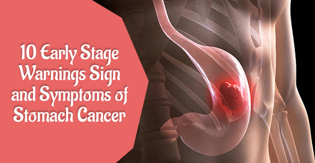 10 Early Stage warnings Sign and Symptoms of Stomach Cancer