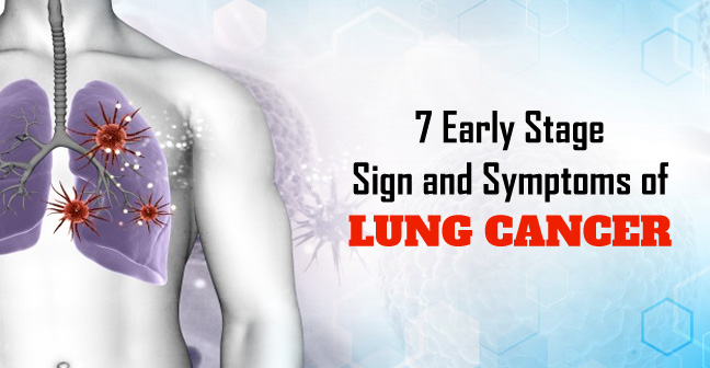7 Early Stage Sign and Symptoms of Lung Cancer