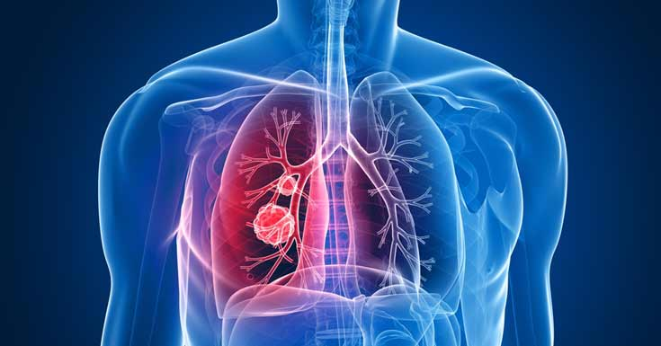 Lung Cancer causes, symptoms, stages