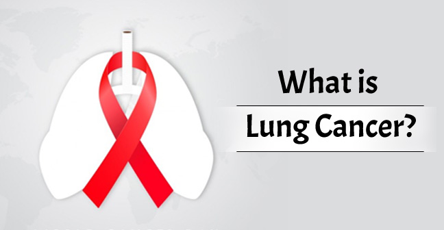 What is Lung Cancer? Survival Rate, Causes, Stages, Diagnosis & Treatment