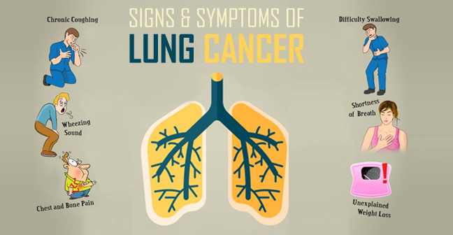 The Symptoms of Lung Cancer in Males and Females