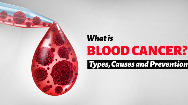 What is Blood Cancer, Types, Causes and Prevention!
