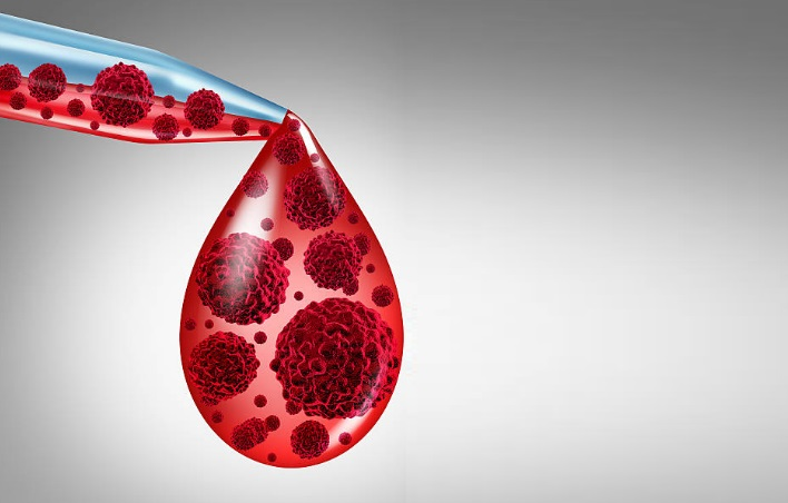 causes of blood cancer