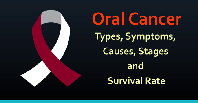 Oral Cancer : Types, Symptoms, Causes, Stages and Survival Rate
