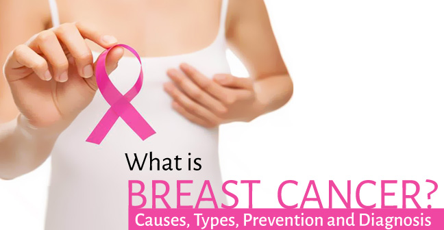 What is Breast Cancer- Causes, Types, Prevention and Diagnosis