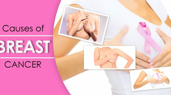 What are the Causes of Breast Cancer?