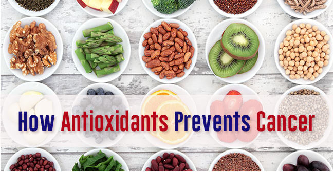 Antioxidants and Cancer- Know Why and How Antioxidants Prevent Cancer!