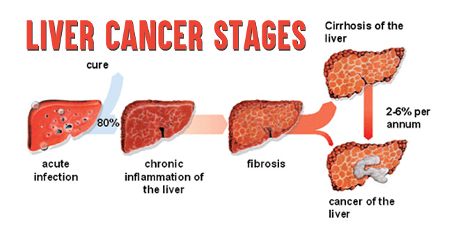 Liver Cancer Stages- How Stages of Lung Cancer are Determined!