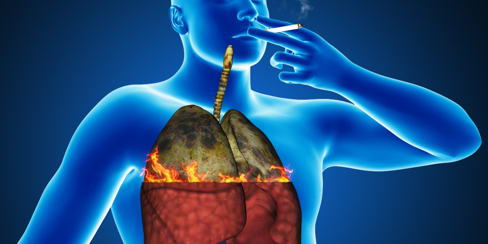 lung cancer symptoms in men