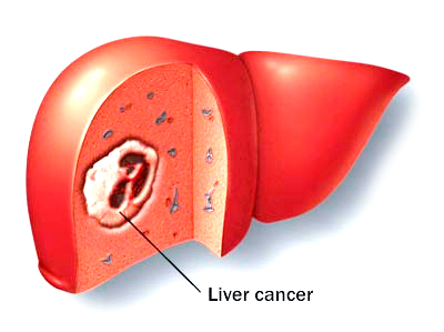 the causes of liver cancer