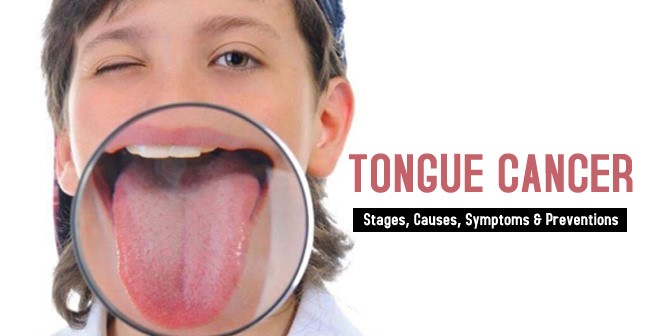 Tongue Cancer- Stages, Causes, Symptoms & Preventions