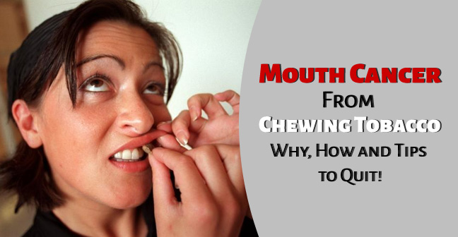 Mouth / Oral Cancer From Chewing Tobacco – Chances and Symptoms