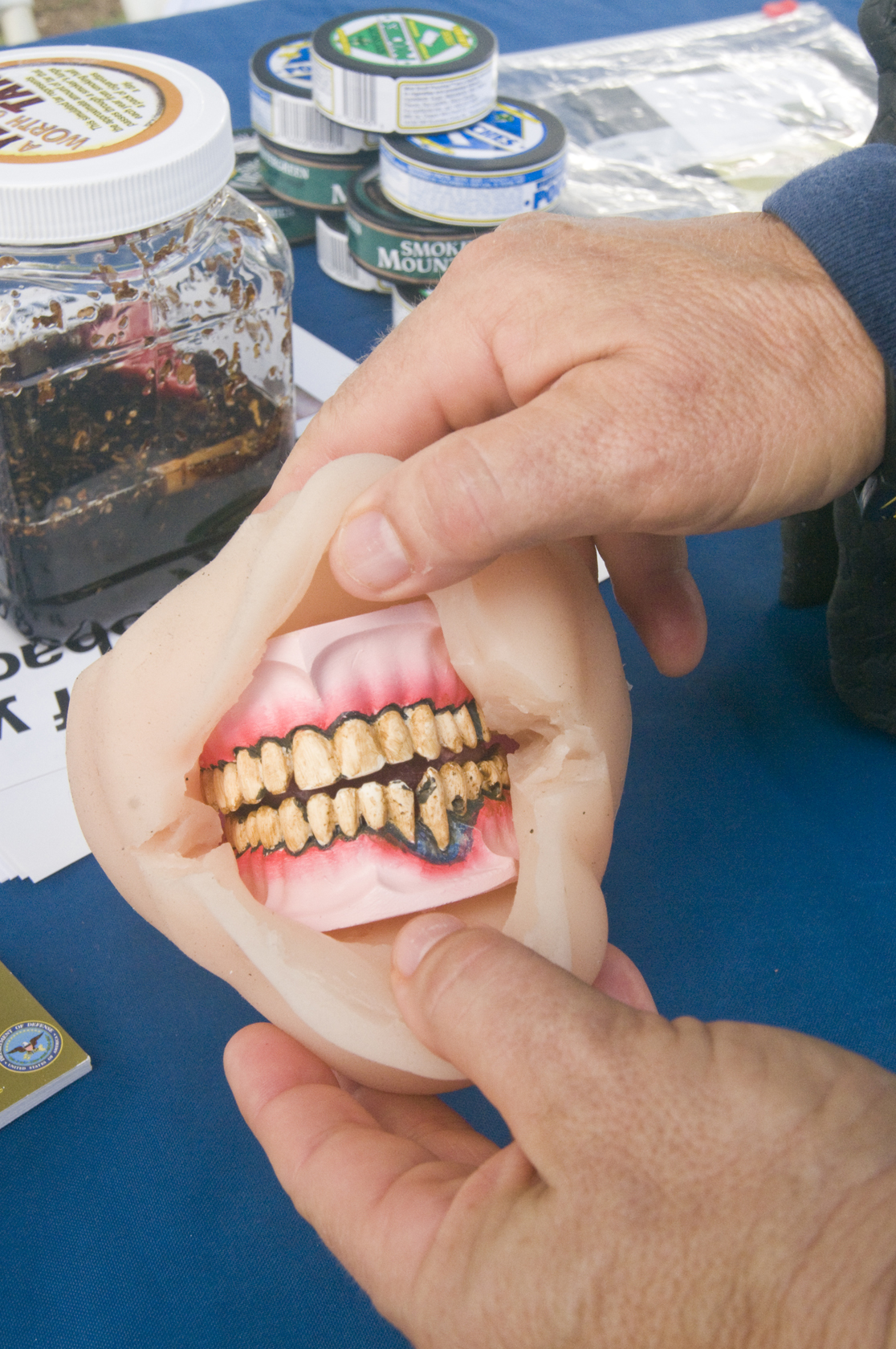 oral cancer from chewing tobacco