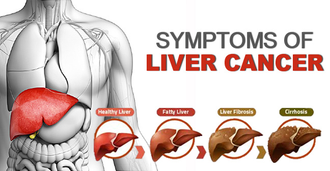 Symptoms of Liver Cancer and Prevention Measures