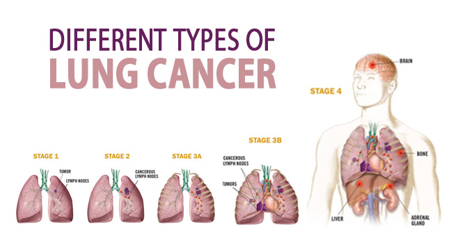 Different Types of Lung Cancer