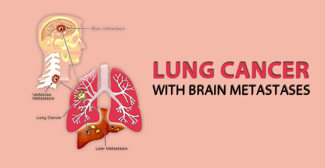 Lung Cancer Brain Metastases – Causes, Symptoms and Treatment Options