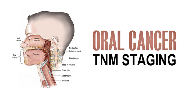 Oral Cancer TNM Staging and It's Classification