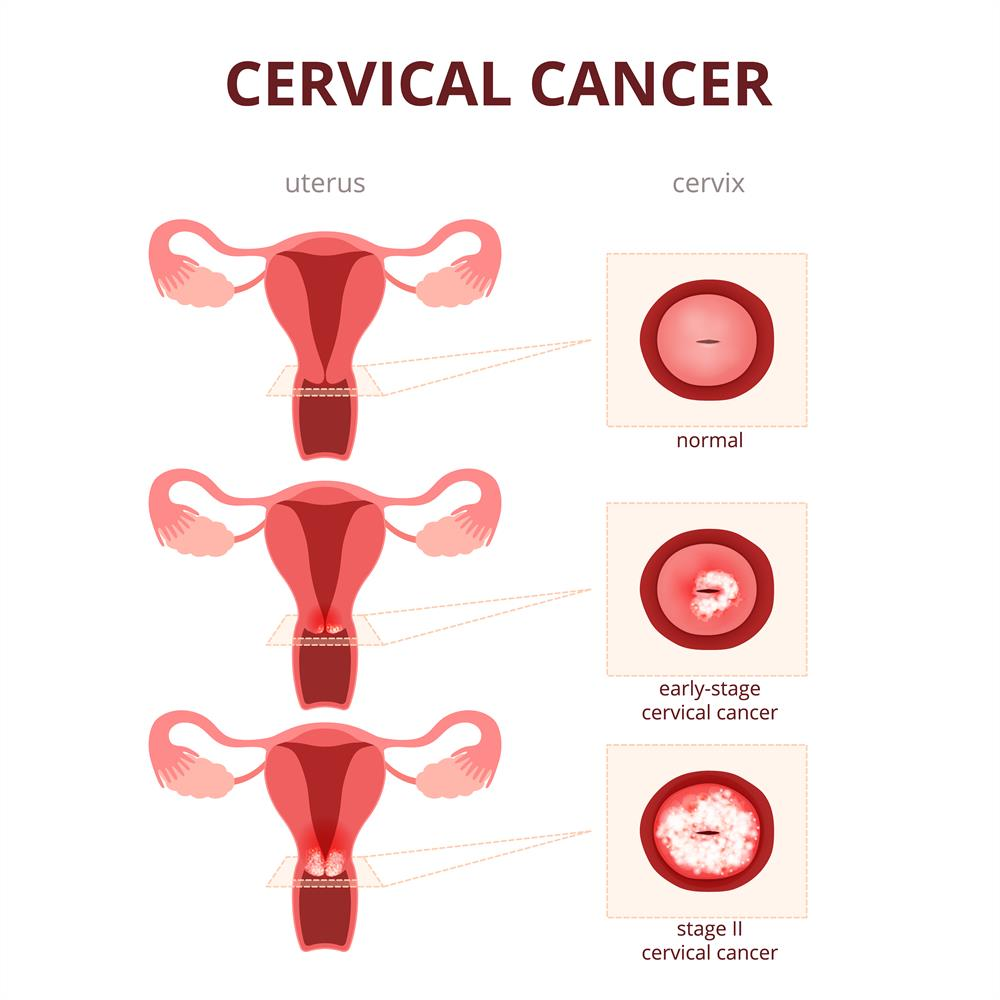cervical cancer diagnosis
