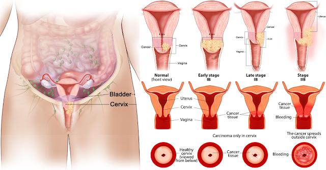 cervical cancer stages