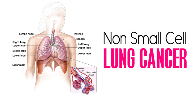 non small cell lung cancer