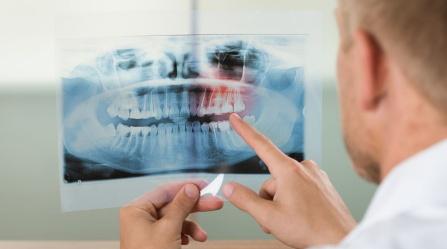 oral cancer diagnosis