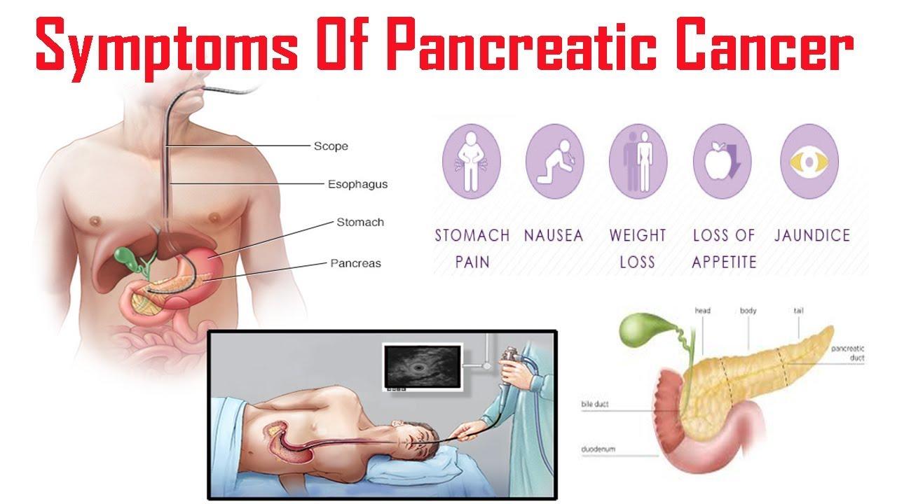 pancreatic cancer symptoms