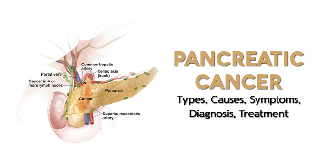 Pancreatic Cancer – Causes, Risk Factors, Symptoms, Prevention