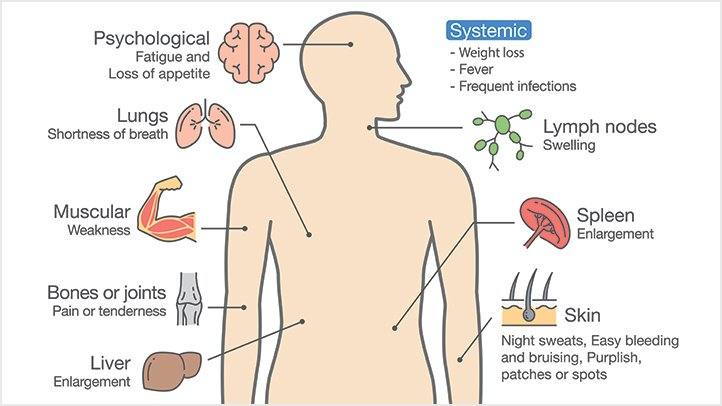 symptoms of leukemia