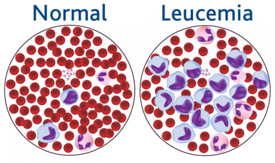 Normal blood cells vs leucemia