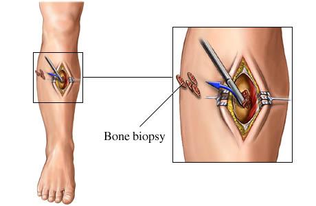 Biopsy for blood cancer