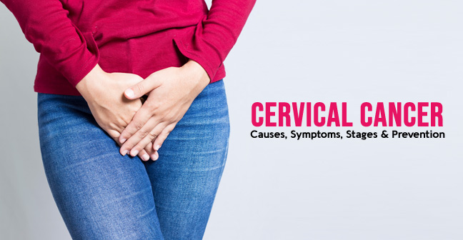Cervical Cancer – Causes, Symptoms, Stages & Prevention