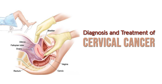 Diagnosis and Treatment of Cervical Cancer