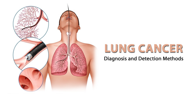 Lung Cancer Diagnosis and Detection Methods