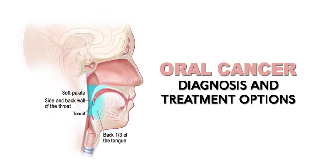 Oral Cancer Diagnosis and Treatment Options
