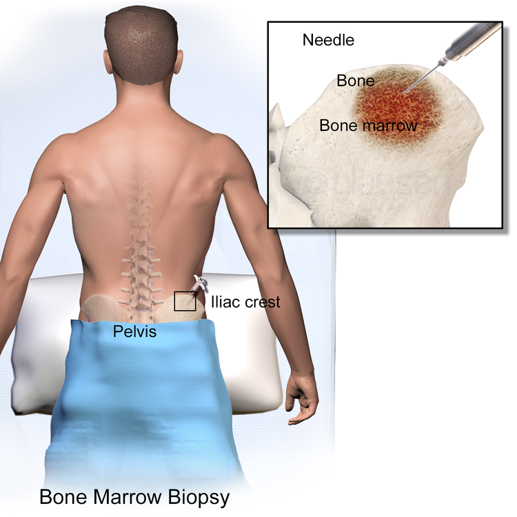 biopsy for bone marrow