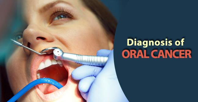 diagnosis of oral cancer
