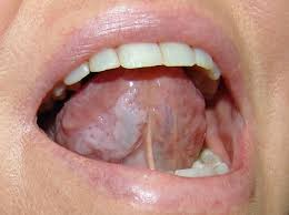 different types of oral cancer