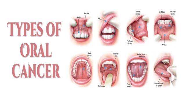 types of orAL CANCER