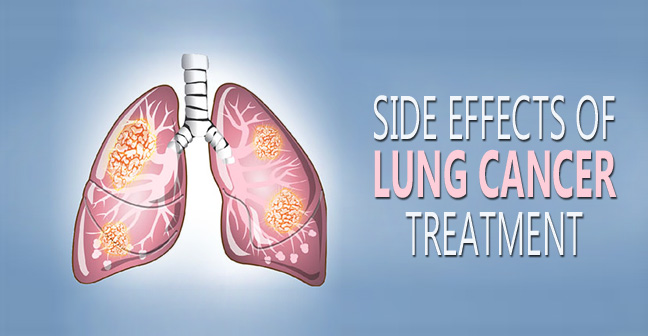 side effects of lung cancer treatment